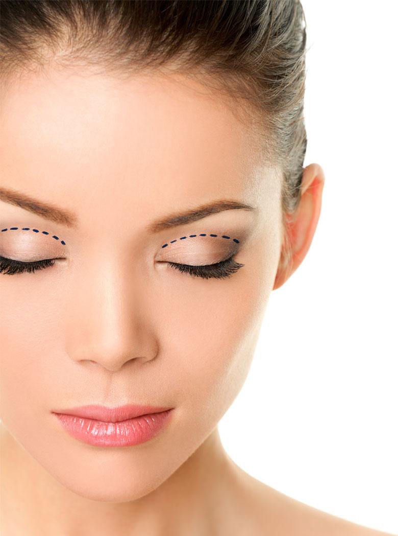 eyelid-lift-blepharoplasty-ver-min