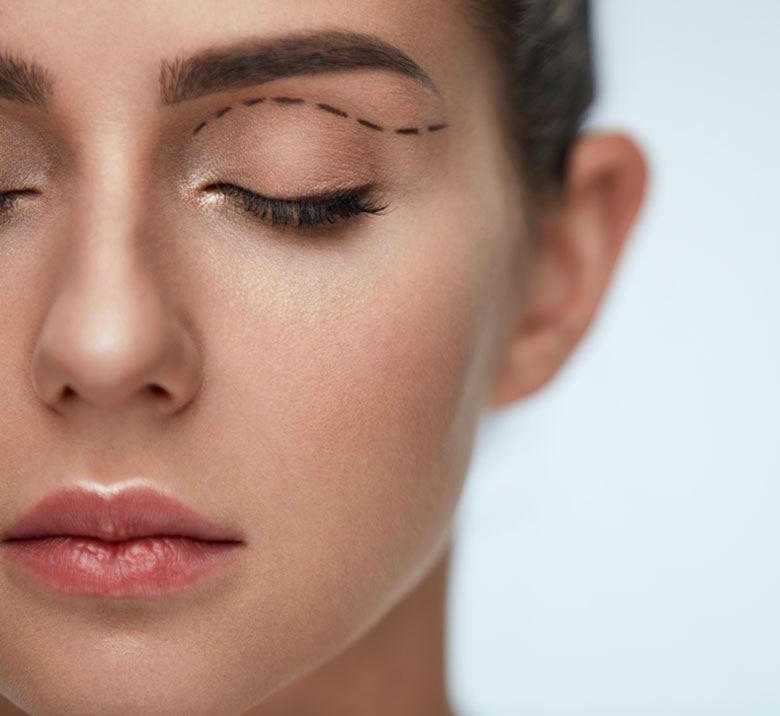 eyelid-surgery-min