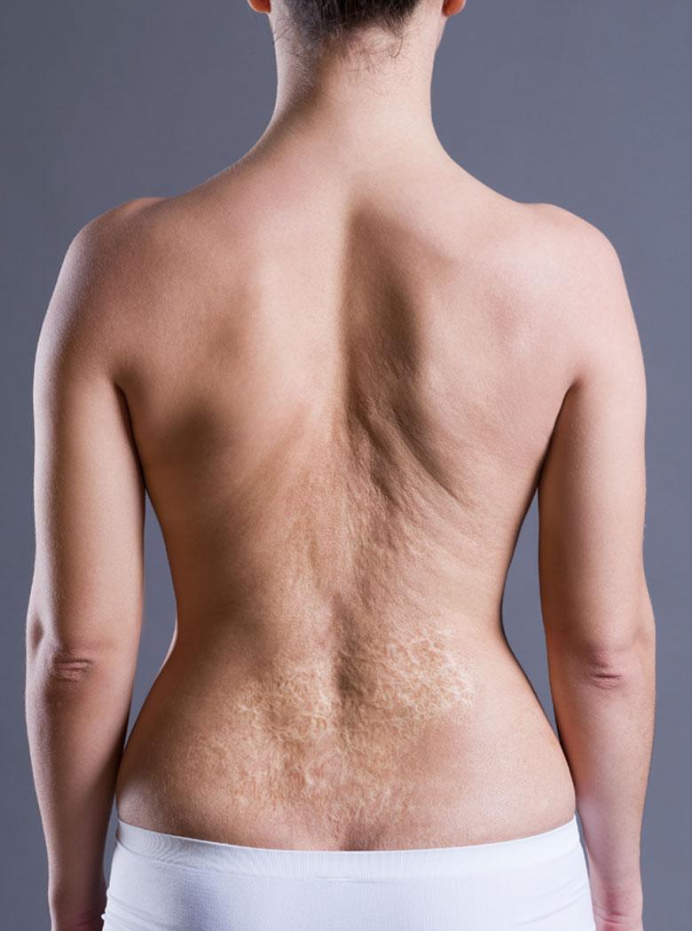 scar-surgery-ver-min